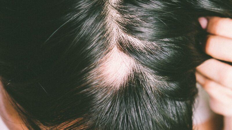 Alopecia e diradamento maschile: tipologie e cause
