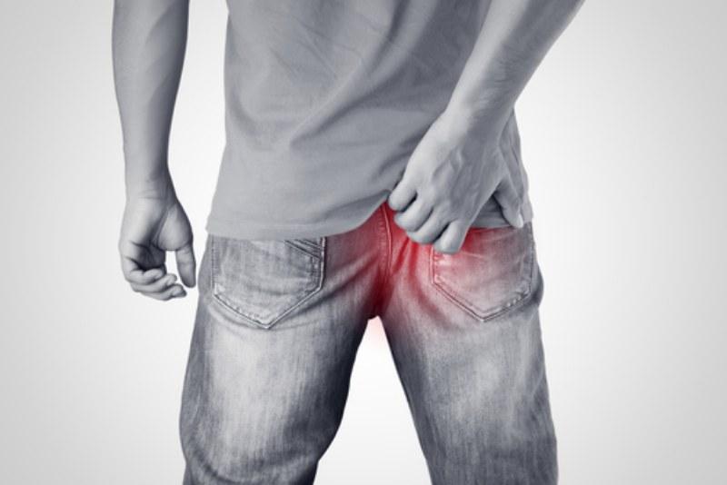 Emorroidi e sintomi: ecco come si manifesta questo disturbo