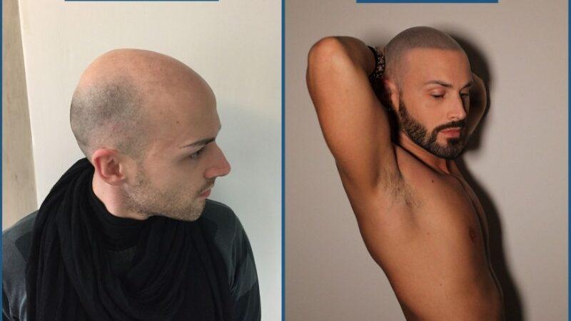 Cosa è e a che cosa serve la tricopigmentazione